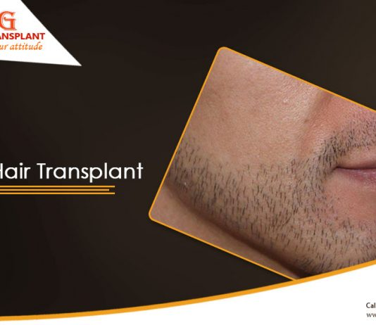 Getting a Beard Hair Transplant to become trendy