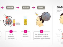 Try Platelet Rich Plasma (PRP) for regrowing your hair