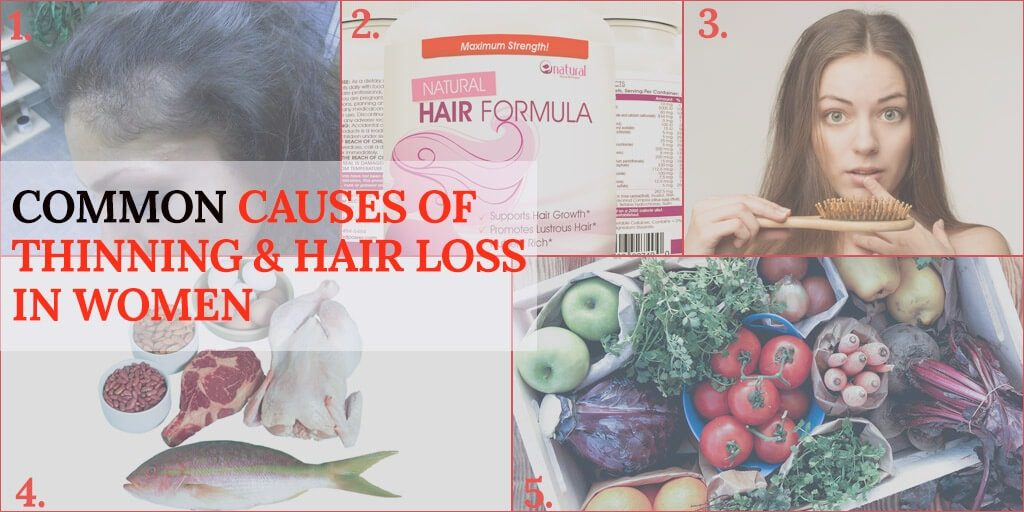 Common Causes of Thinning & Hair Loss in Women