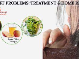 Dandruff Problems: Treatment & Home Remedies