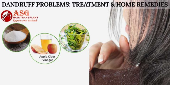 Dandruff Problems: Treatment & Home Remedies