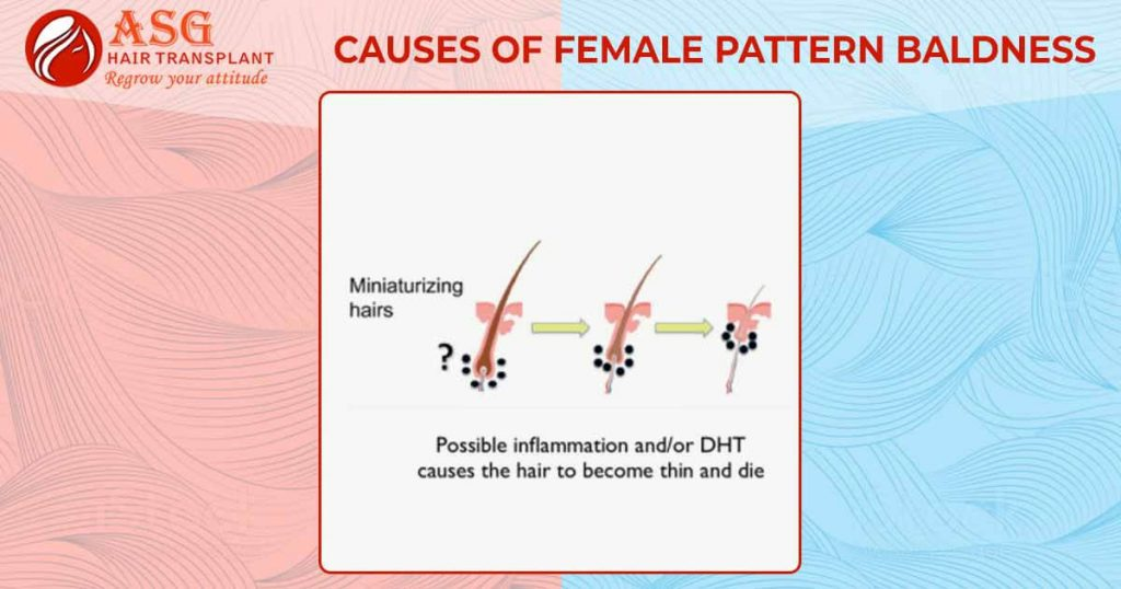 Causes of female pattern baldness