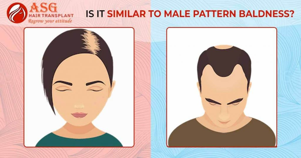 Is it similar to male pattern baldness?