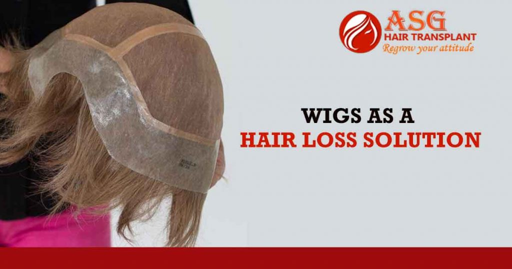 Wigs As A Hair Loss Solution