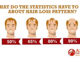 What do the statistics have to say about hair loss pattern?