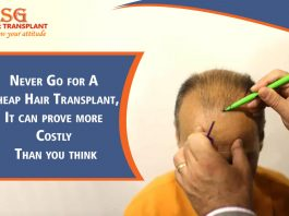 Never Go for A Cheap Hair Transplant, It can prove more Costly Than you think