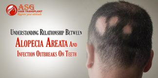 Understanding Relationship Between Alopecia Areata And Infection Outbreaks On Teeth