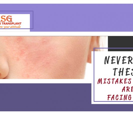 Never Do These mistakes if you are facing acne