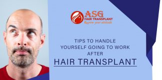 Tips to handle yourself going to work after hair transplant