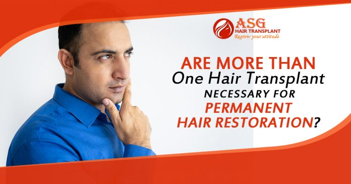 Are More than One Hair Transplant necessary for Permanent Hair Restoration?