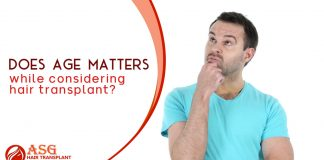 Does Age Matters while considering hair transplant