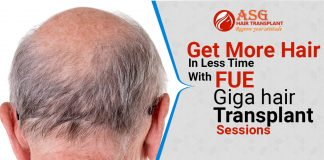Get More Hair In Less Time With FUE Giga hair Transplant Sessions