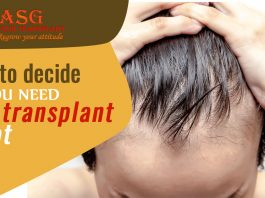 How to decide if you need hair transplant or not