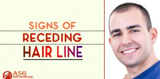 Signs of Receding Hair Line