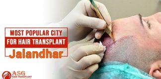 Most popular city for hair transplant Jalandhar