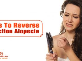 Tips To Reverse Traction Alopecia