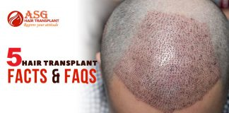 5 Hair Transplant Facts & FAQs