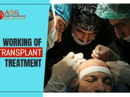 Working of hair transplant treatment