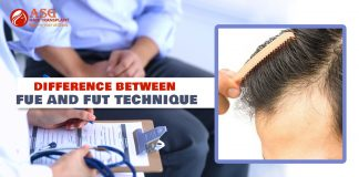 Difference between FUE and FUT technique - ASG Hair Transplant Centre