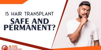 Is hair transplant safe and permanent - ASG Hair Transplant Centre Punjab