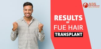 Results of FUE hair transplant