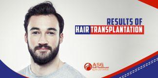 Results of hair transplantation