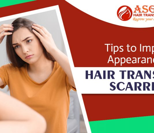 Tips to Improve Appearance of Hair transplant Scarring (3)