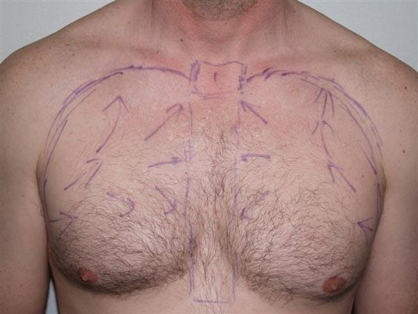body-hair-transplant