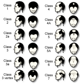 male_hairloss_chart