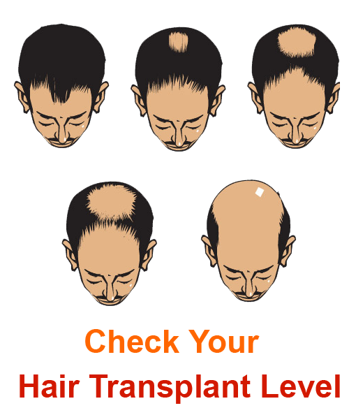 check hair loss stages