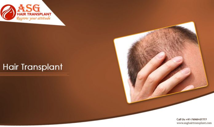 Hair transplants for women in India
