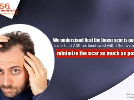 Full Procedure of Hair Transplant Surgery