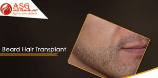 hair transplant methods