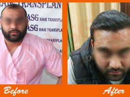 body hair transplant results