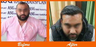 body hair transplant results