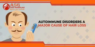 Autoimmune Disorders a Major Cause of Hair Loss