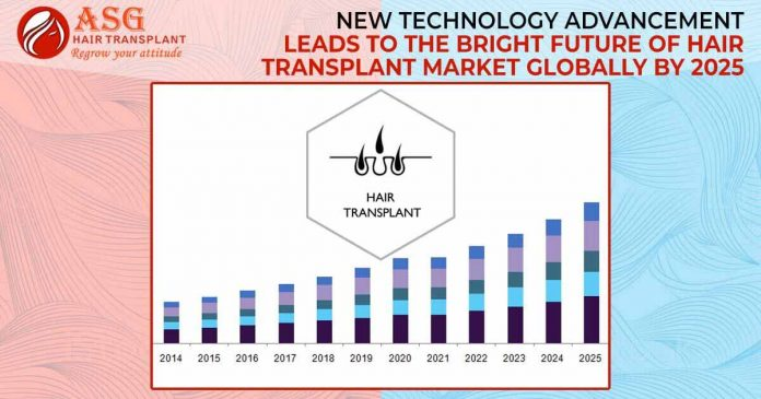 New Technology Advancement Leads To The Bright Future Of Hair Transplant Market Globally By 2025
