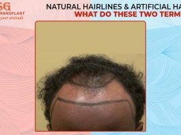 Natural Hairlines & Artificial Hairlines: What Do These Two Terms Mean?