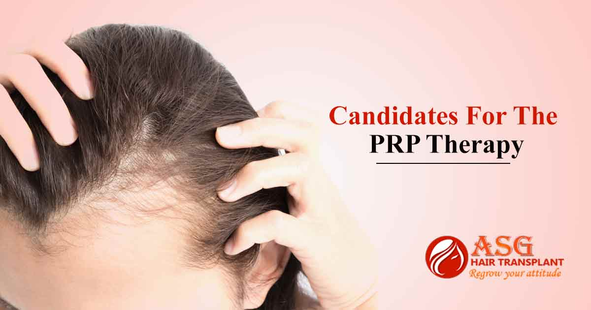 Candidates for the PRP therapy