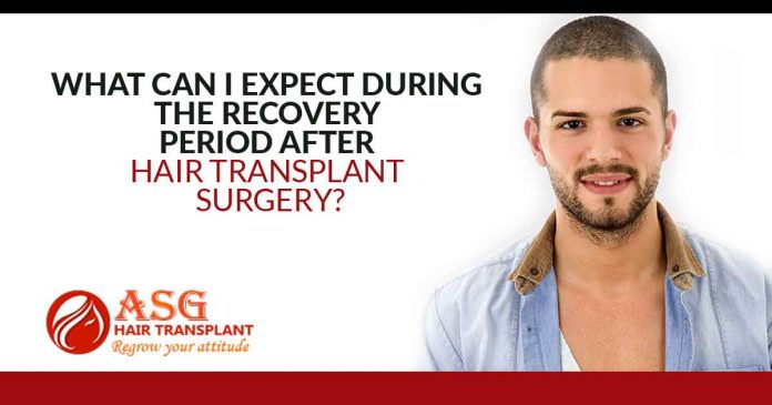What Can I Expect During The Recovery Period After Hair Transplant Surgery?