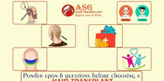 Ponder Upon 6 Questions Before Choosing A Hair Transplant