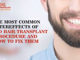 The most common aftereffects of beard hair transplant procedure and how to fix them
