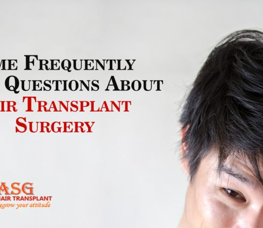 Some Frequently Asked Questions About Hair Transplant Surgery