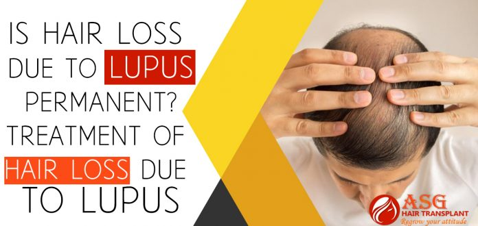 Is Hair loss Due To Lupus Permanent Treatment of Hair loss Due to Lupus