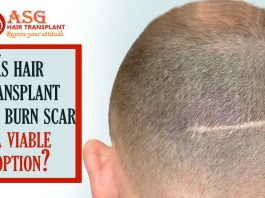 Is hair transplant on a burn scar a viable option