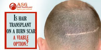 Is hair transplant on a burn scar a viable option