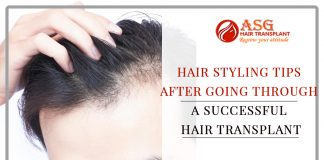 Hair Styling Tips after Going through a sucessfull hair transplant