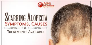 Scarring Alopecia - Symptoms, Causes And Treatments Available