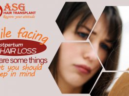 while facing Postpartum Hair Loss here are some things that you should keep in mind(1)