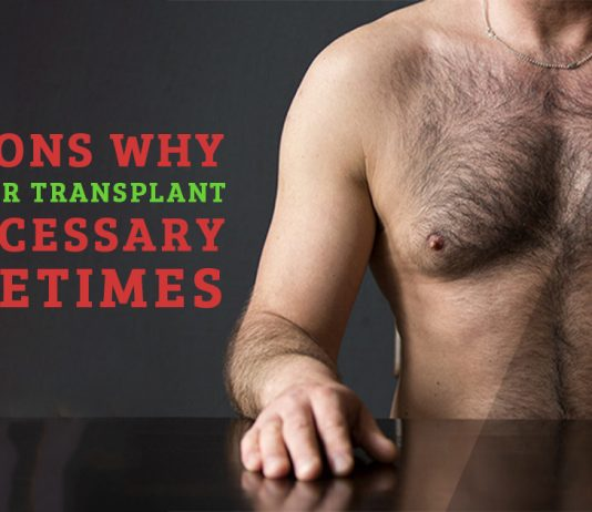 Reasons Why Body Hair Transplant is necessary sometimes